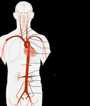 aorta1