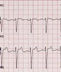 ecg-brugada-syndrome-type-2.jpg