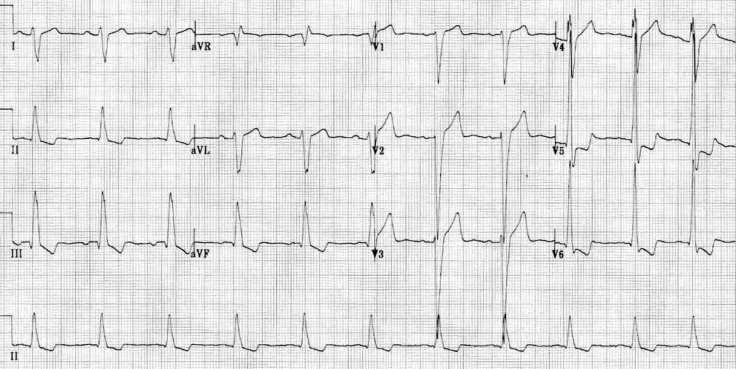 ecg-dilated-cardiomyopathy-biventricular-hypertrophy
