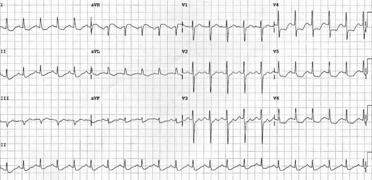 ecg-left-main-coronary-artery-lmca-1